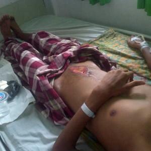 Jefrianto terbaring di RS Rigional Mamuju